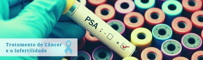 Tratamento câncer de próstata e infertilidade